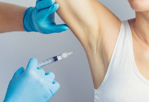 The doctor making intramuscular injection with syringe of botulinum toxin in the armpit against hyperhidrosis. stock photo