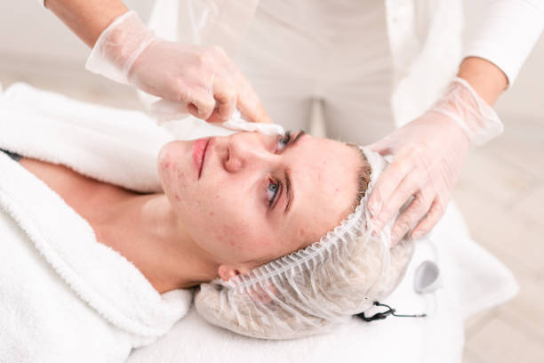 The doctor removes the gel from the patients face and apply a therapeutic cream. Anti acne phototherapy. Beautiful woman during photo rejuvenation procedure. Face skin treatment at cosmetic clinic. stock photo