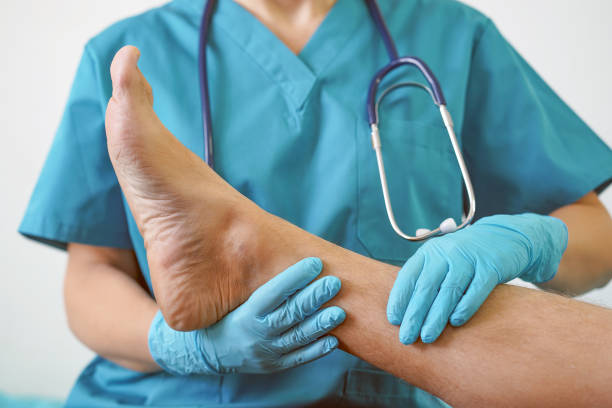 the doctor's hands in gloves hold a foot with toe, infected with nail fungus for examination and diagnosis. - podiatry stock pictures, royalty-free photos & images