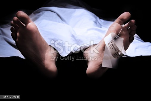 Conceptual shot of feet with a hospital information ring and tag representing death