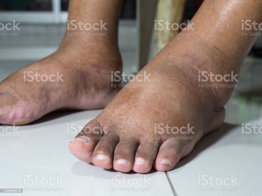 The Feet Of People With Diabetes Dull And Swollen Due To The