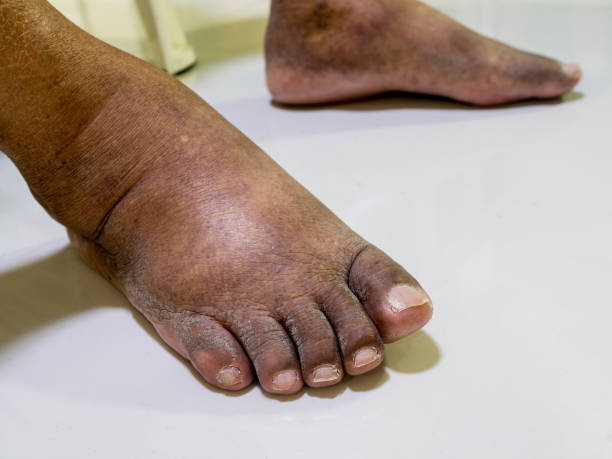 The feet of people with diabetes, dull and swollen. Due to the toxicity of diabetes. stock photo