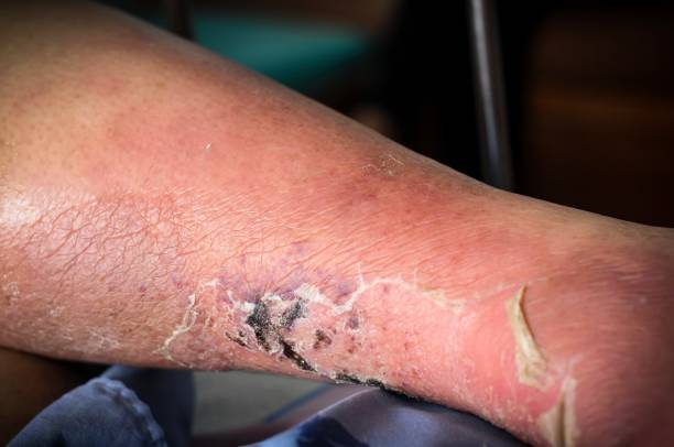 The feet of people with diabetes, dull and swollen. Due to the toxicity of diabetes, ulceration stock photo