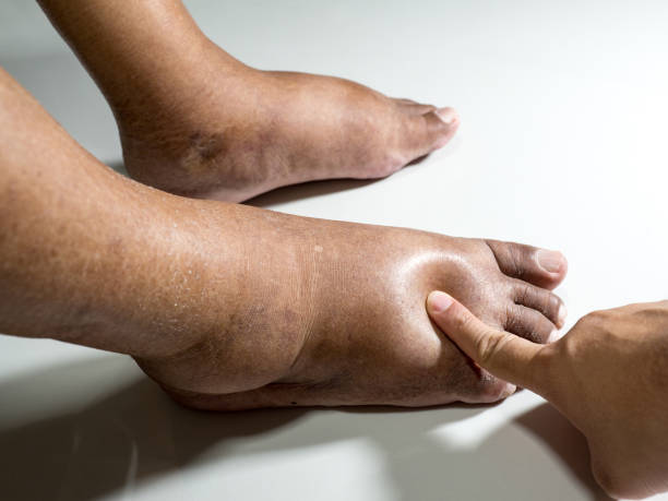 The feet of people with diabetes, dull and swollen. Due to the toxicity of diabetes placed on a white background. Fingers hit the back of the diabetic foot. To test foot swelling. stock photo