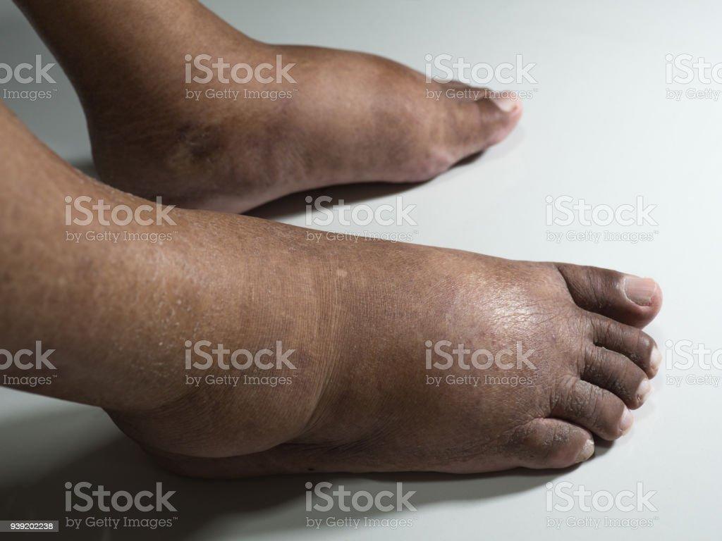 descripción del pie plano de la diabetes