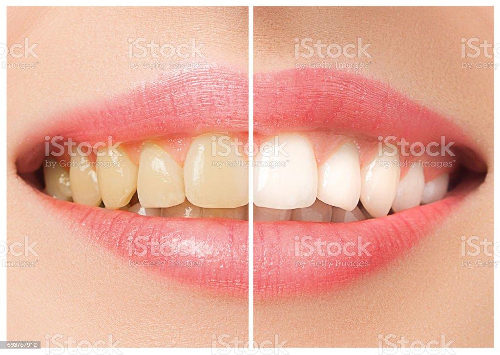 Die weibliche Zähne vor und nach der Aufhellung – Foto