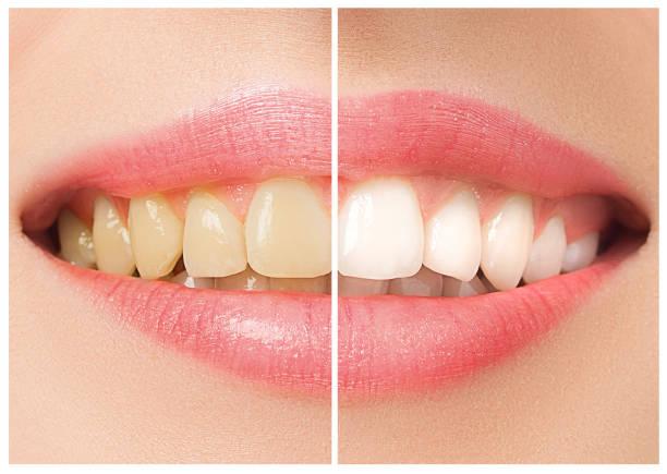 de vrouwelijke tanden voor en na de whitening - tanden bleken stockfoto's en -beelden