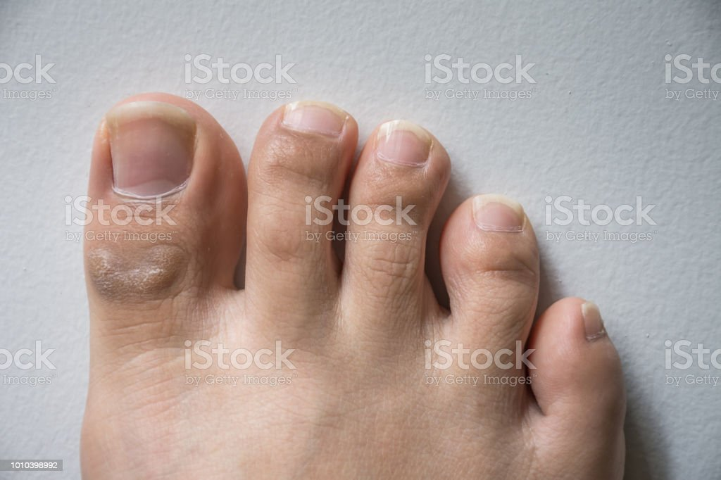 The Foot And Long Nail Toes On White Concrete Background Long Nails ...