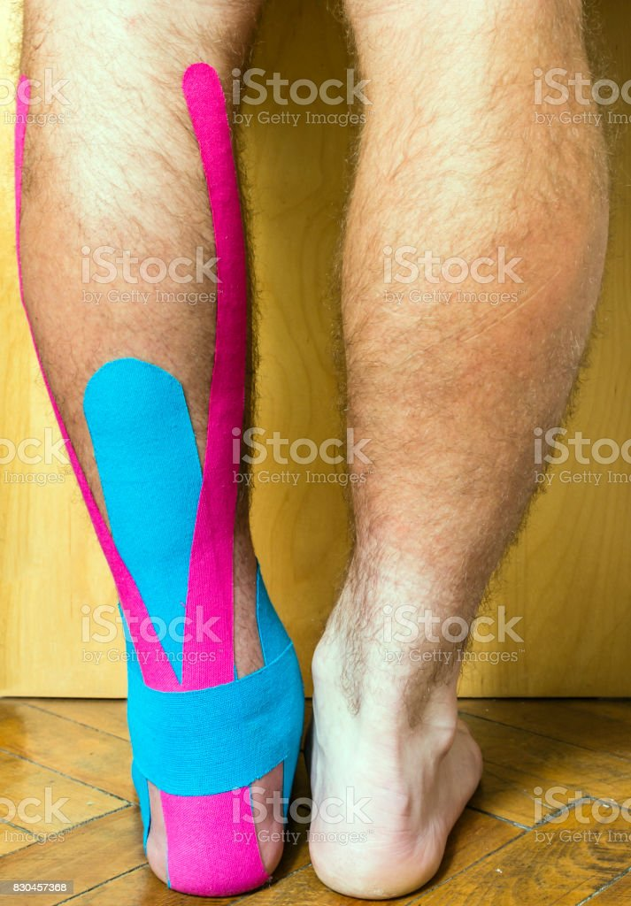 The foot with a wound covered with tape used in elastic therapeutic tape (Kinesio Taping). stock photo