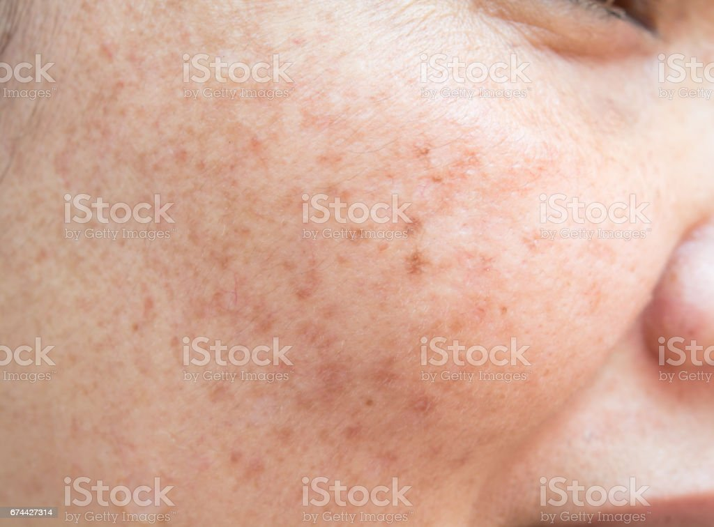 The freckles and freckles on the face. stock photo