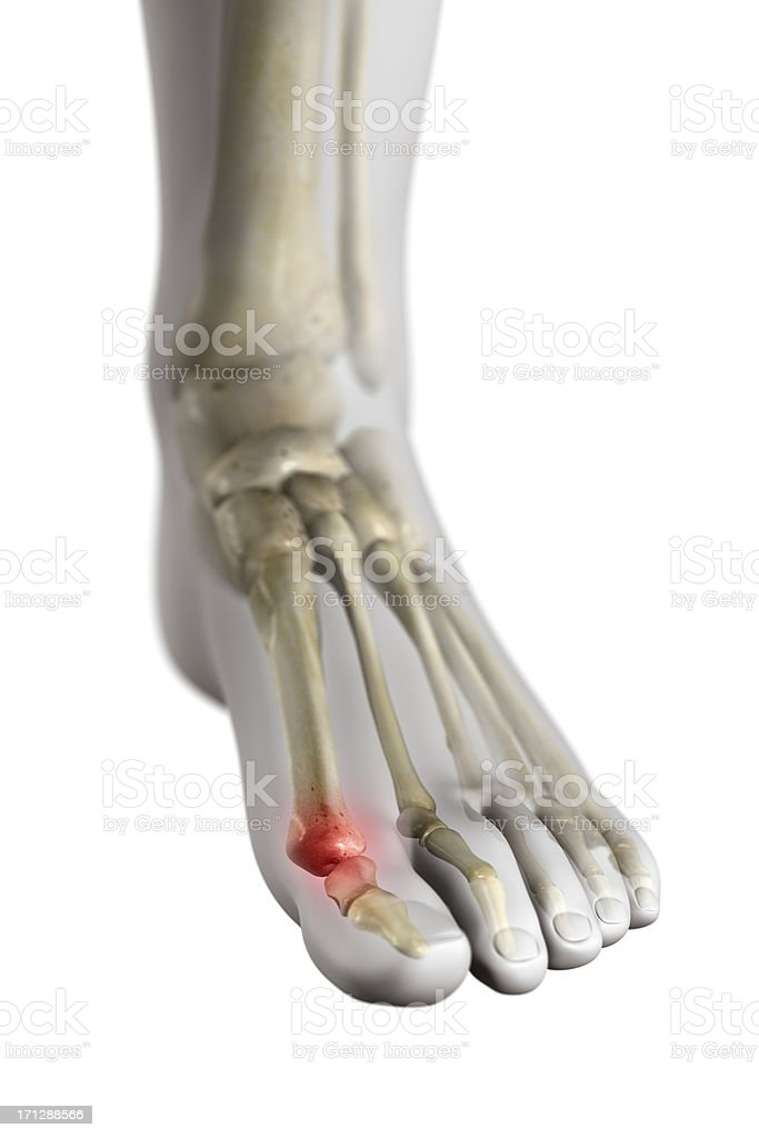 The Gout stock photo