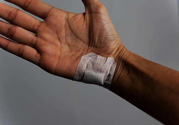 The hand wound caused by an accident. stock photo