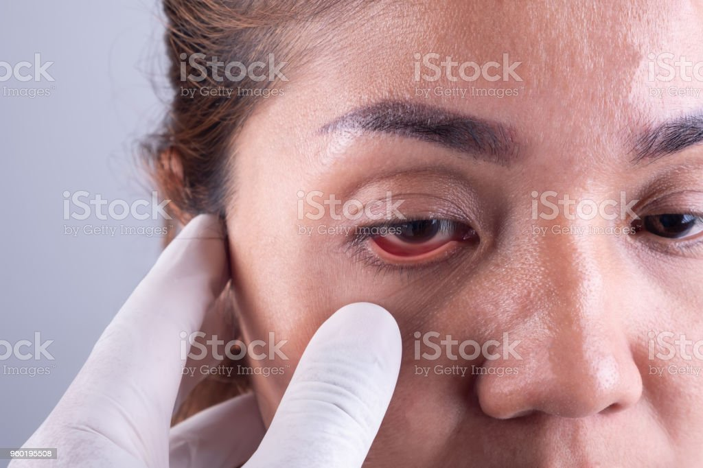 The hands of an ophthalmologist and a young Asian patient. Visiting the eye health stock photo