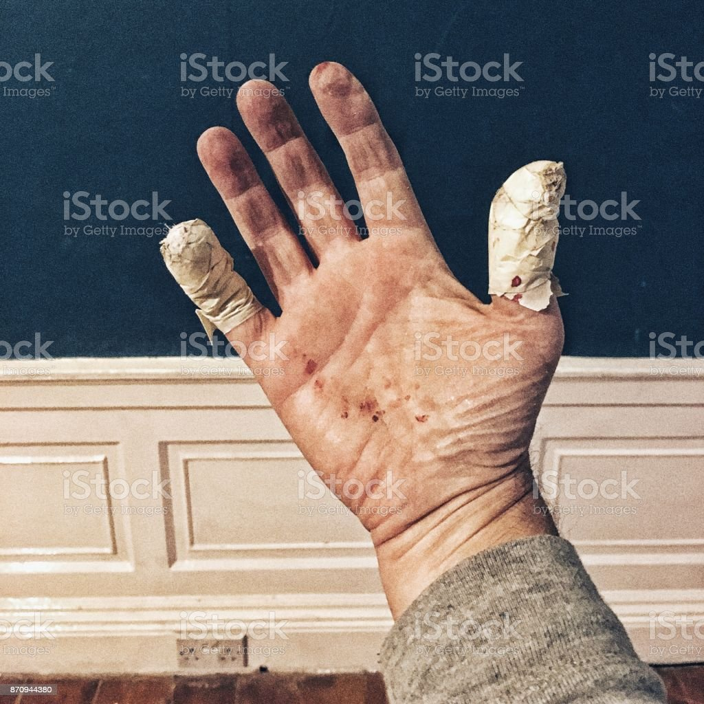 The hazards of DIY - cuts and bruises royalty-free stock photo