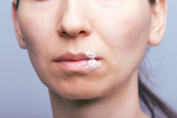 The Herpes virus on mouth of young woman Macro shot of herpes virus on mouth of young woman. Herpes smeared with curative ointment herpes stock pictures, royalty-free photos & images