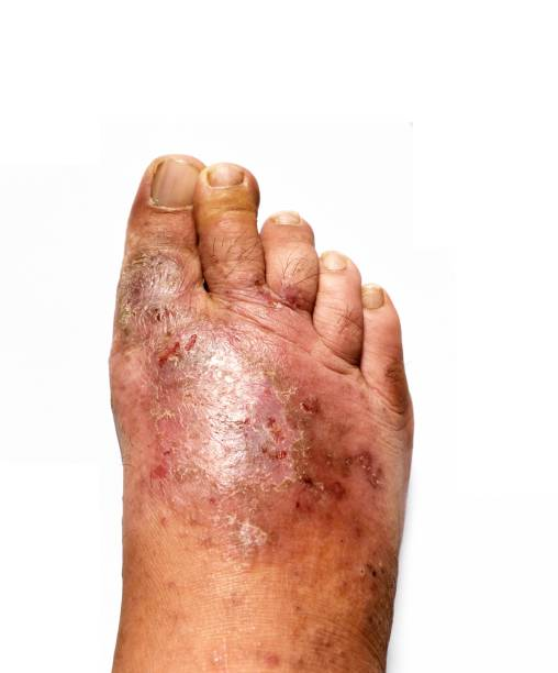 The human feet is a fungal skin lesions stock photo