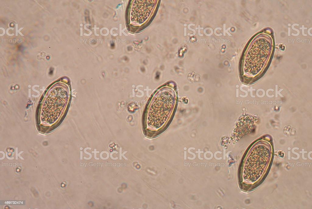 a trichocephalosis is hatékony féregtabletta