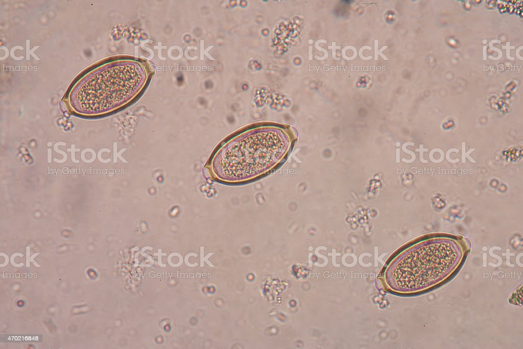 a trichocephalosis is