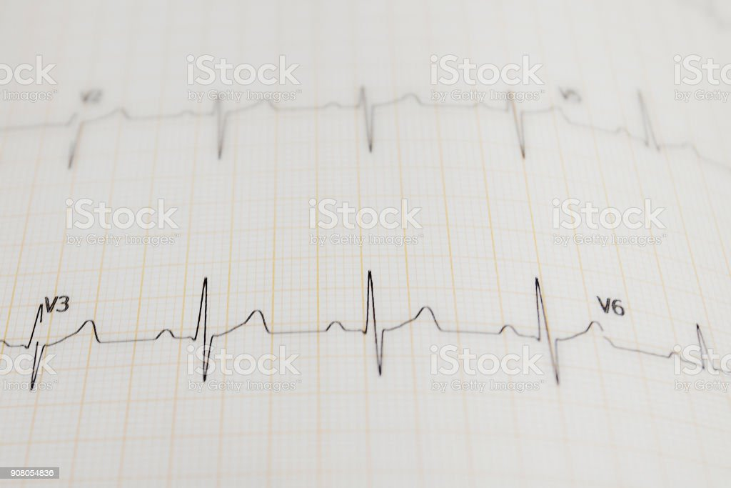 The image of sinusoid stock photo