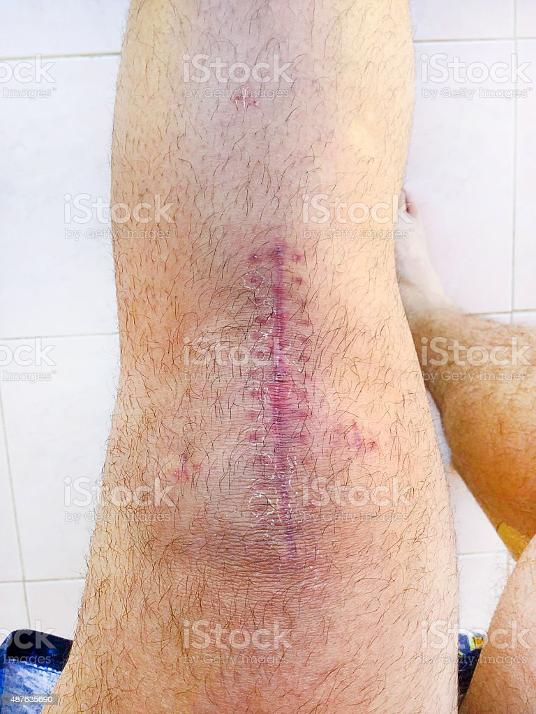 The knee surgery stock photo