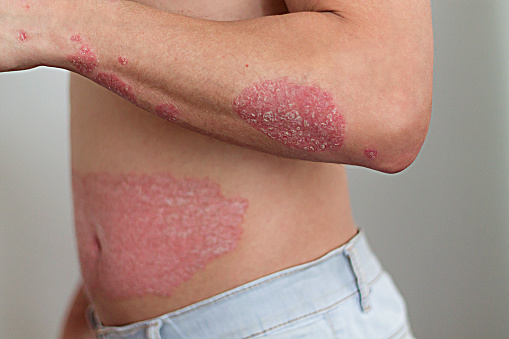 The Man On The Arm And Abdomen Psoriasis Stock Photo - Download Image Now