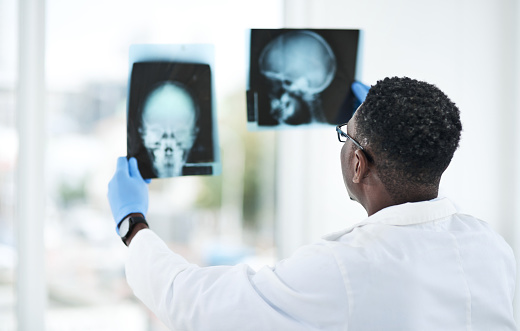 Shot of a young doctor analysing an x ray of a patient's skull