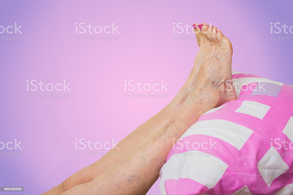 The optimal and therapeutic leg pos stock photo
