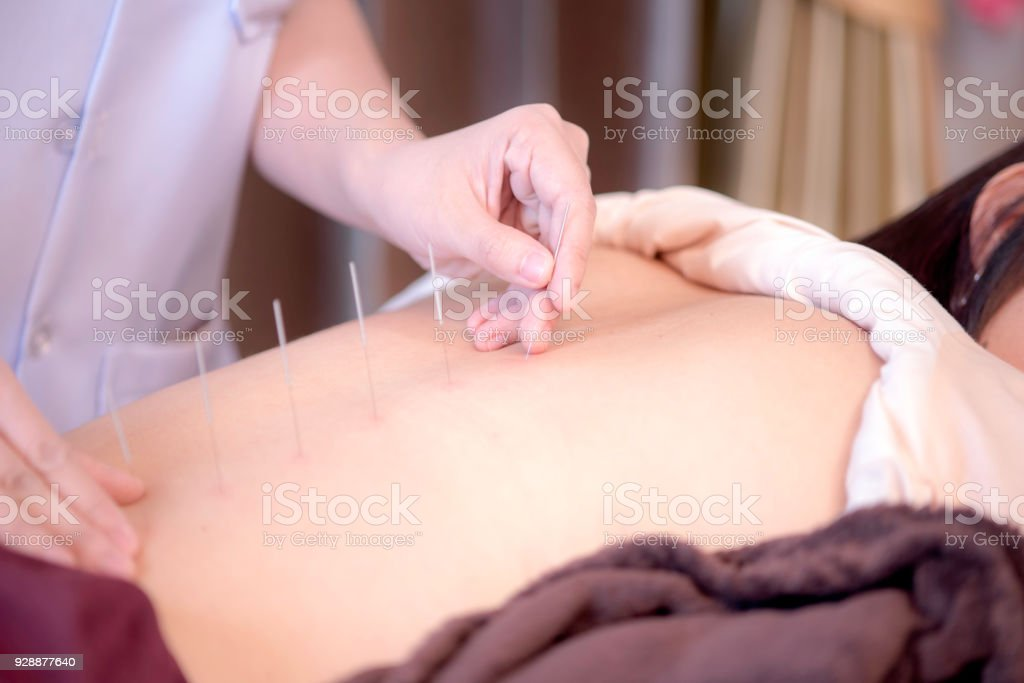 The physiotherapist is doing acupuncture on the back of a female patient. Patient is lying down on a bed. stock photo
