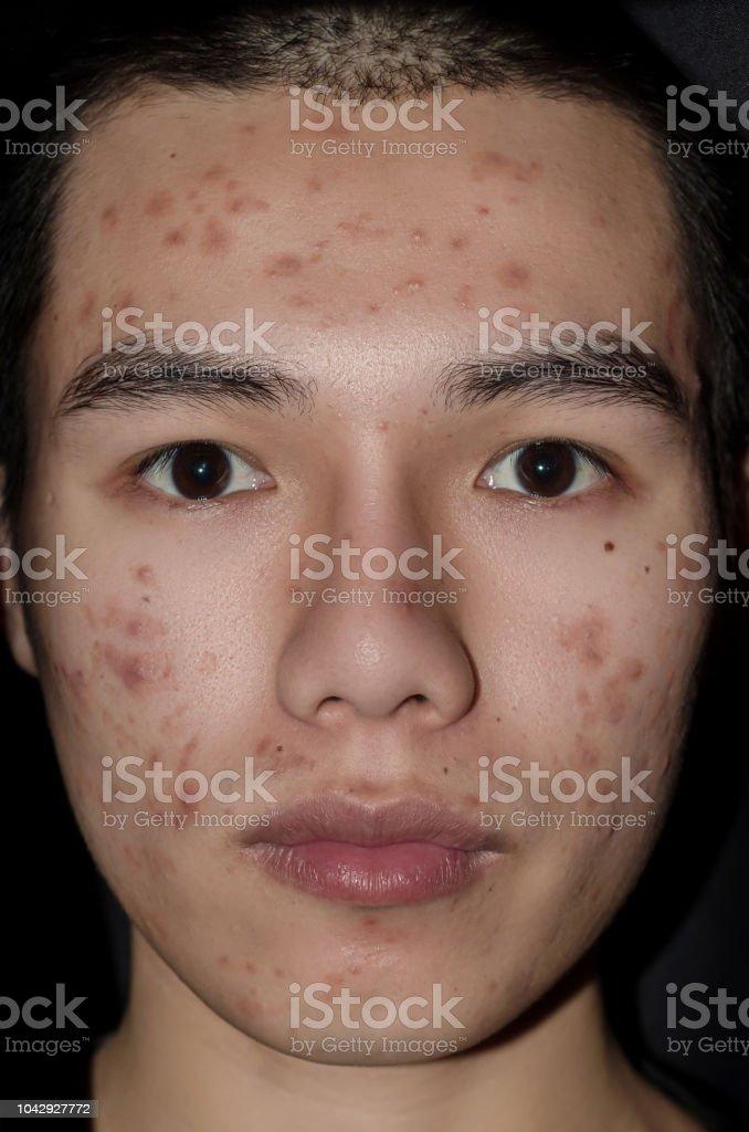akne erwachsenen verursachen