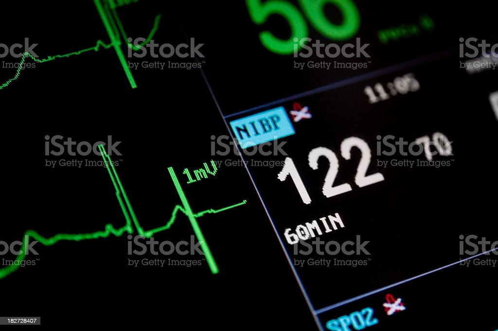 The screen of a heart monitor from an intensive care unit royalty-free stock photo