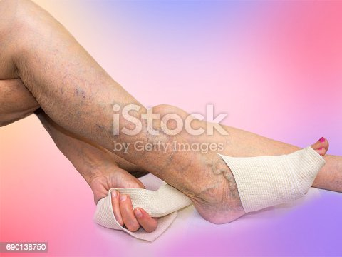 875123630istockphoto The senior woman correcting an elastic bandage which tied her leg. 690138750