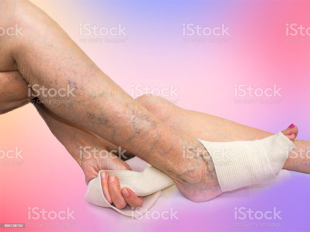 The senior woman correcting an elastic bandage which tied her leg. stock photo
