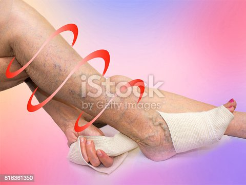 875123630istockphoto The senior woman correcting an elastic bandage which tied her leg. 816361350