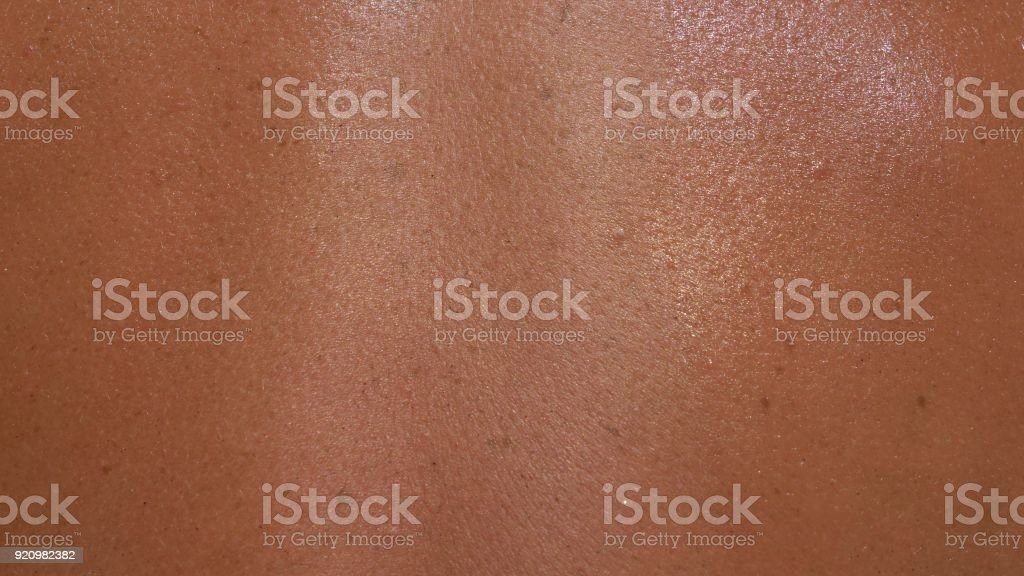 The skin is scorched in the sun with in macro. stock photo
