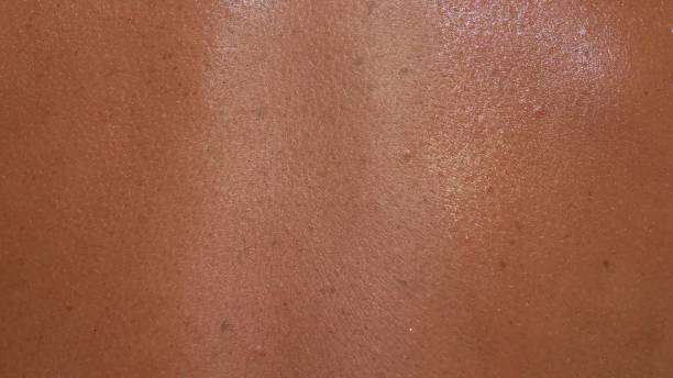 The skin is scorched in the sun with in macro. The skin is scorched in the sun with in macro. There are signs of an incipient melanoma. peel plant part stock pictures, royalty-free photos & images