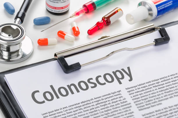 The text Colonoscopy written on a clipboard The text Colonoscopy written on a clipboard film and television screening stock pictures, royalty-free photos & images