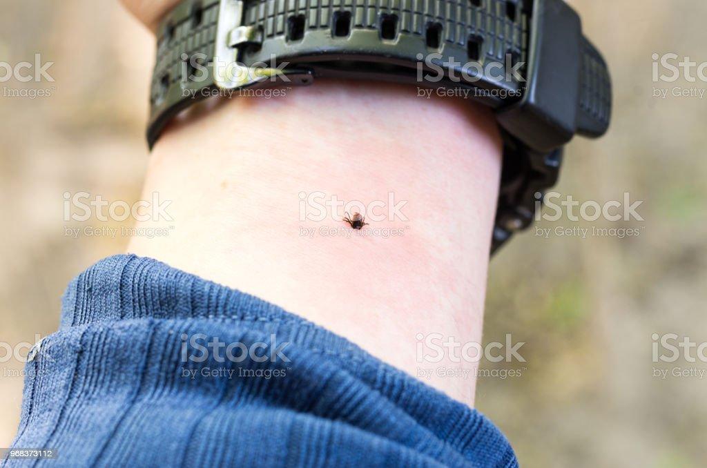 Die Zecke beißt seine Hand. Milben unter der Haut. Die Hand des Menschen. – Foto