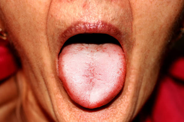 The tongue is in a white raid. Candidiasis in the tongue The tongue is in a white raid. Candidiasis in the tongue. treponema pallidum stock pictures, royalty-free photos & images