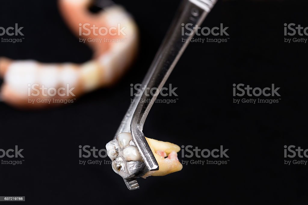 The tooth removed in forceps stock photo