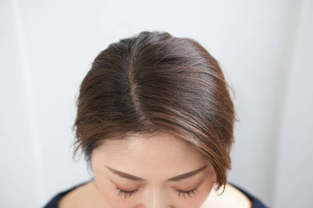 The top of a woman's head for pressing points The top of a Japanese woman's head for checking an oriental acupoint human scalp stock pictures, royalty-free photos & images