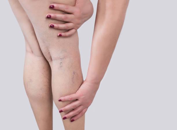 de spataderen op een benen van vrouw - bloedvat stockfoto's en -beelden