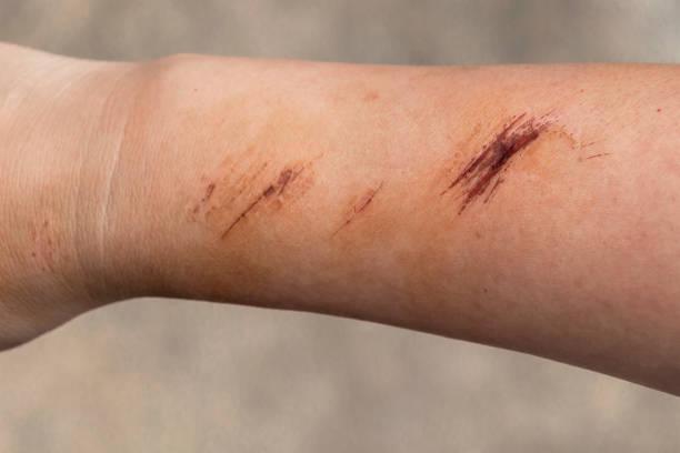 de wond vorm korstjes op de hand en arm. de wond gebeurt tijdens verwondingen van de vrouw te vallen op de weg. - menselijke arm stockfoto's en -beelden
