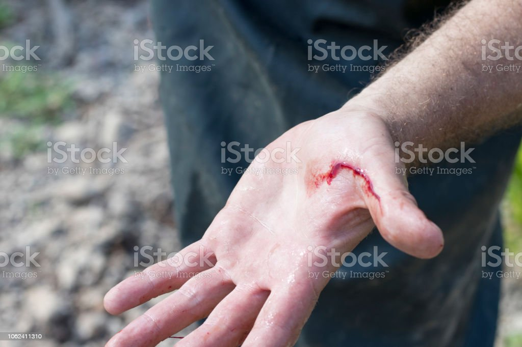 The wounded palm of the person with which the blood flows