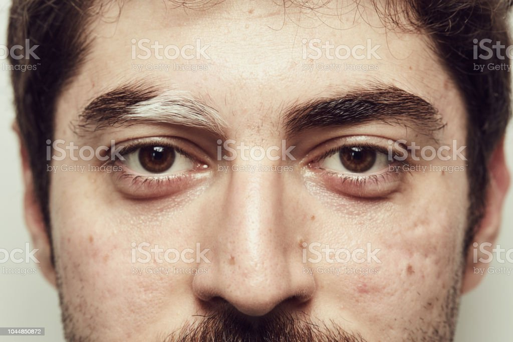 The Young Man Has A White Eyebrow As A Result Of Vitiligo Stock Photo Download Image Now Istock