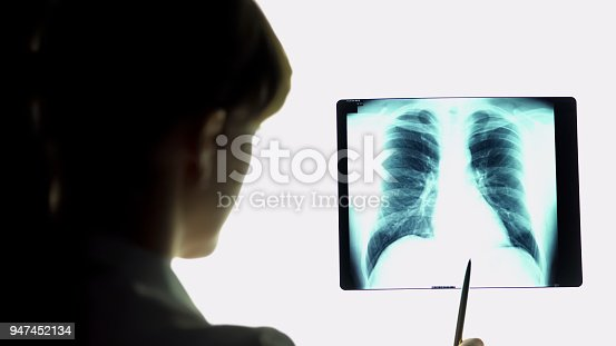 836113342 istock photo Therapist analyzing pneumonia lungs x-ray image, making conclusions, healthcare 947452134