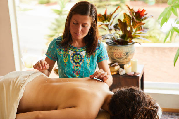 Therapist doing acupuncture in her alternative medicine clinic stock photo
