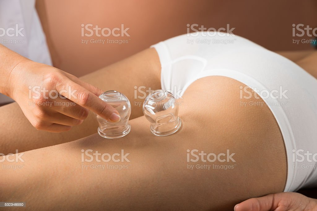 Therapist Placing Cups On Thigh stock photo