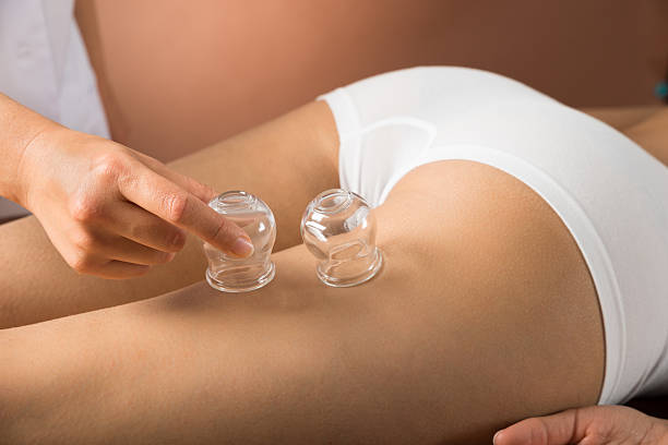 therapist placing cups on thigh - cupping therapy stock photos and pictures