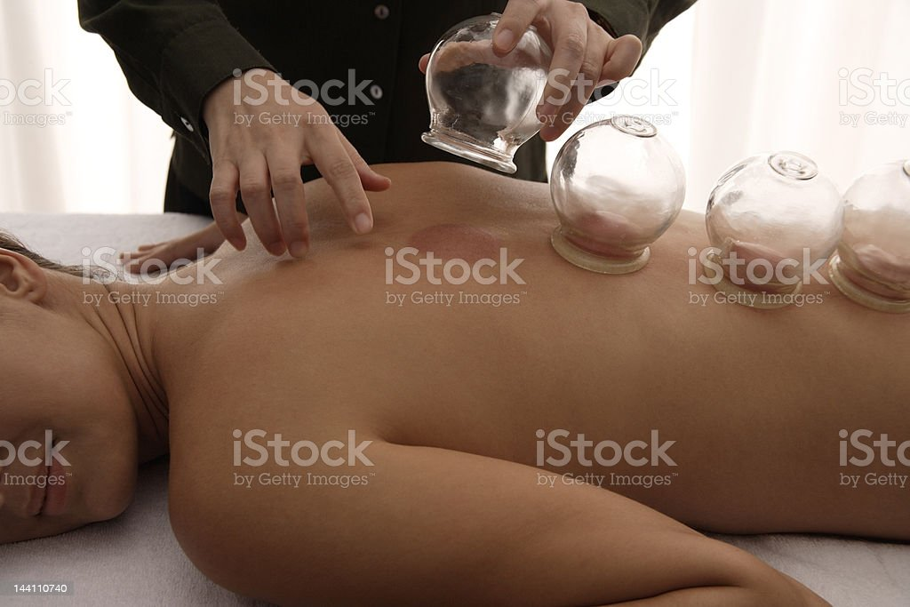 therapist removing cups from suction treatment stock photo