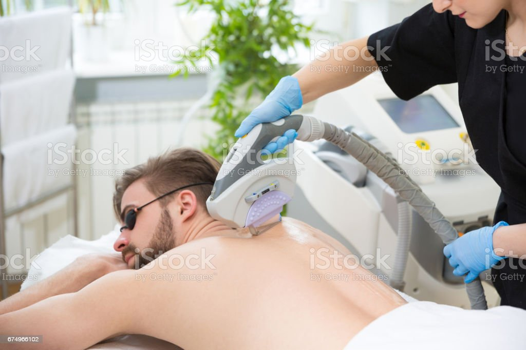 IPL therapy at men's back stock photo